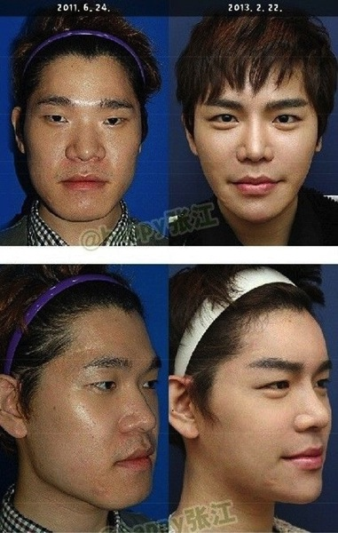 Korean boy before and after surgery