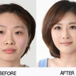 plastic-surgery-in-korea-6.jpg