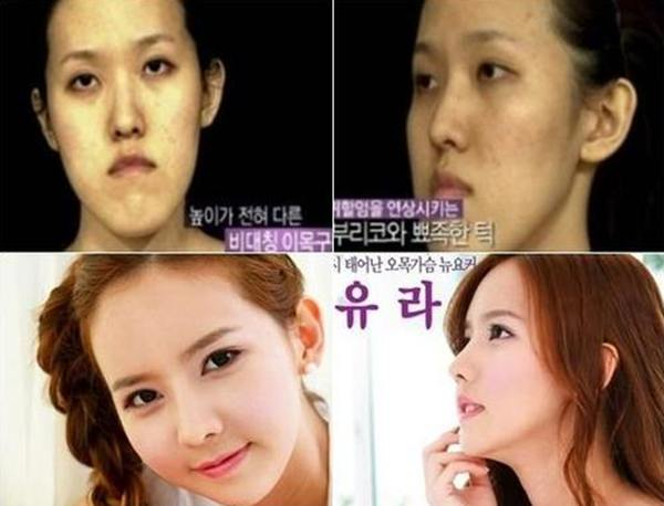 Plastic surgery in korea