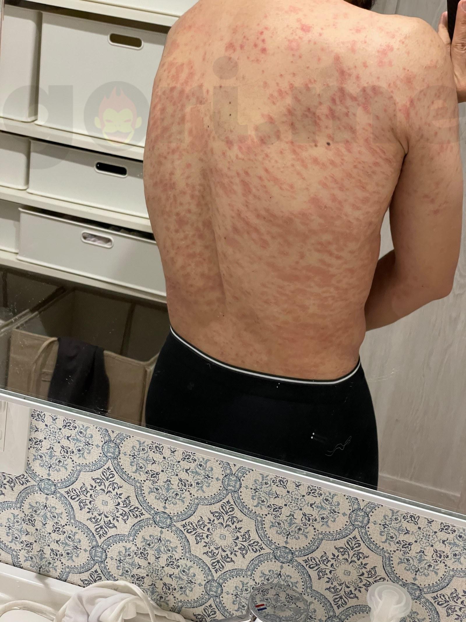 赤い 点々 太もも 虫刺されで赤い斑点が出る3つの理由とは?