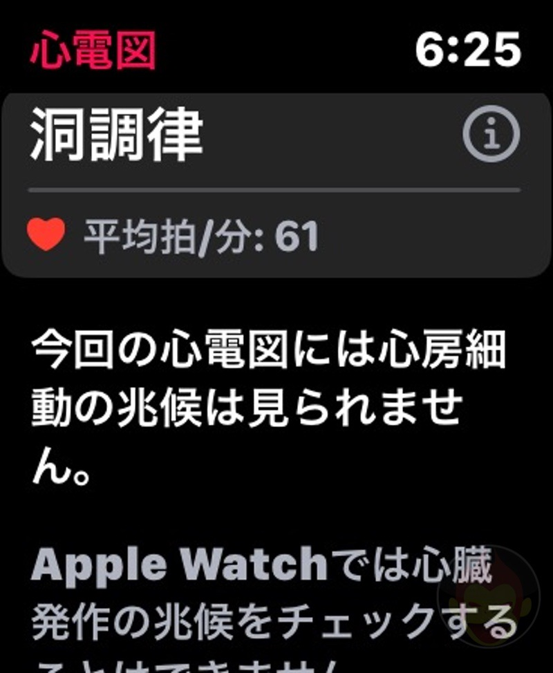 Apple-Watch-ECG-App-03.jpg
