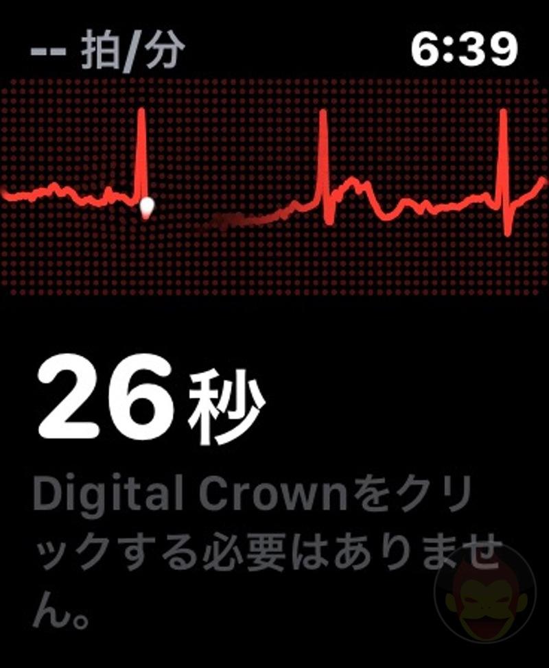 Apple-Watch-ECG-App-04.jpg