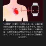 Apple-Watch-ECG-App-Setup-Howto-06.jpg