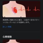 Apple-Watch-ECG-App-Setup-Howto-07.jpg