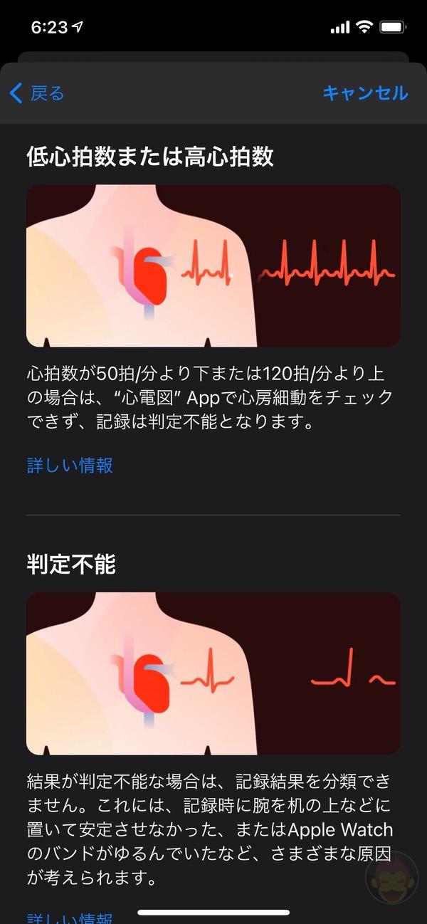 Apple-Watch-ECG-App-Setup-Howto-08.jpg
