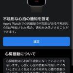 Apple-Watch-ECG-App-Setup-Howto-16.jpg