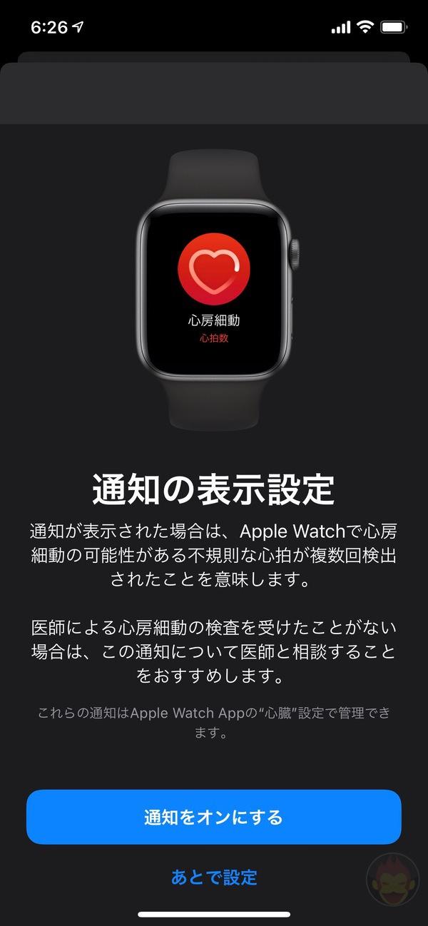 Apple-Watch-ECG-App-Setup-Howto-24.jpg