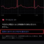 Apple-Watch-ECG-App-Setup-Howto-27.jpg