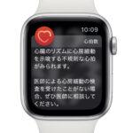 Apple_watch-alerts-heartrate-atrialfibrillation-longlook.jpg