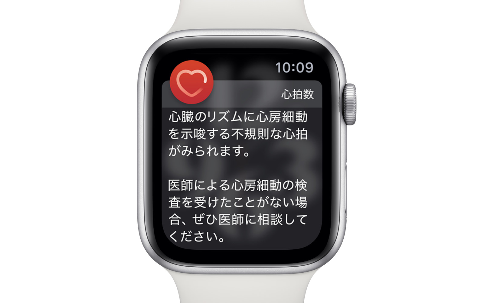 Apple watch alerts heartrate atrialfibrillation longlook